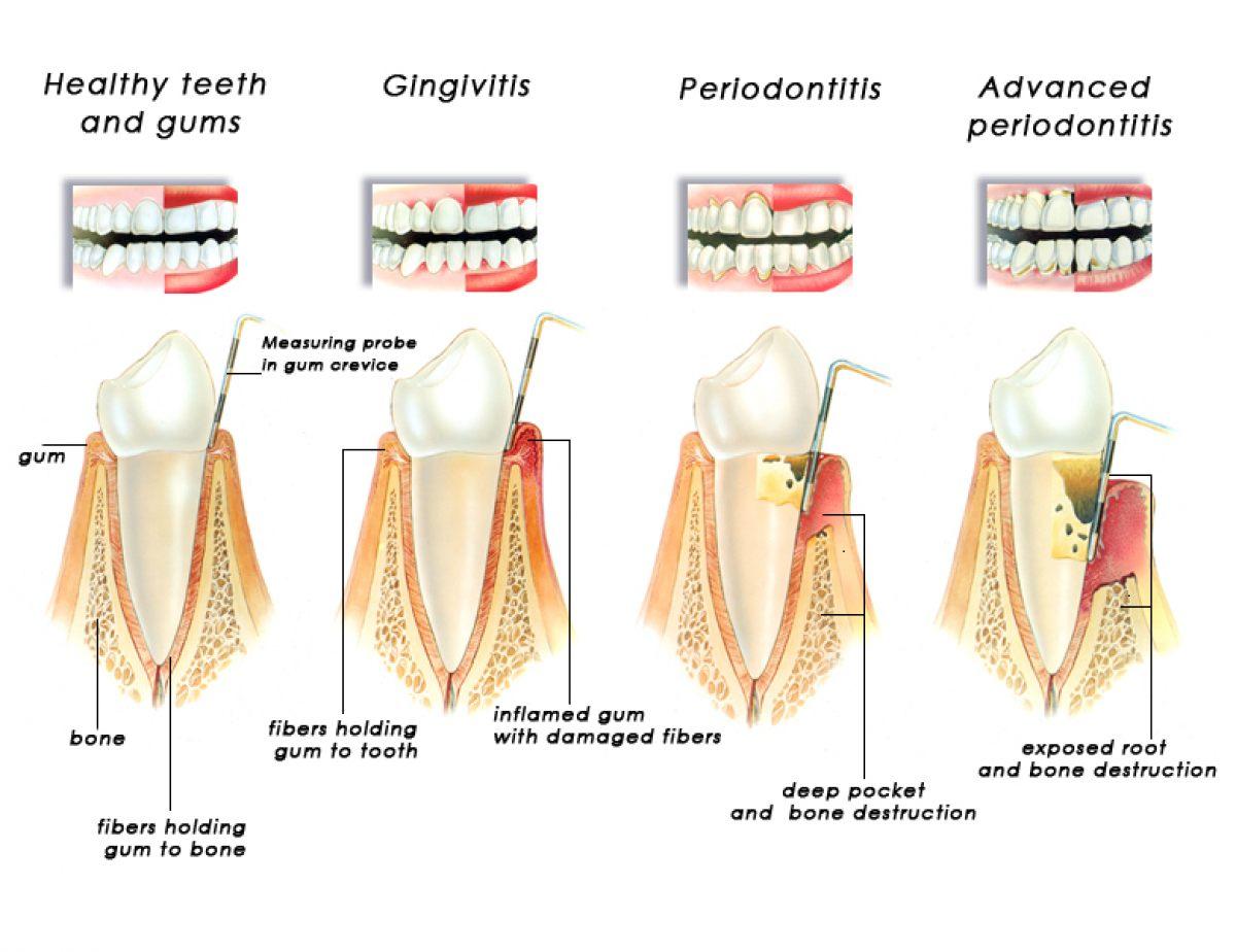 Blog Stomatologia Dr. Ungureanu